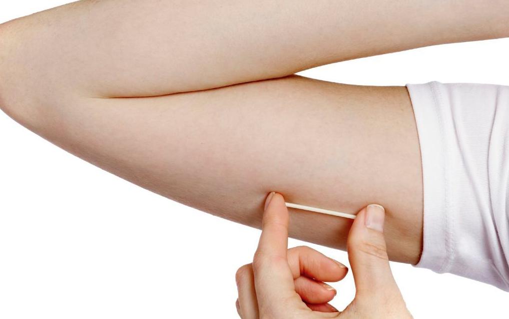 ¿Qué es el implante anticonceptivo?